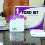 Dosen UNAIR Ciptakan Alat Diagnosa Toksoplasma