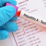 Kemenkes Duga KLB Hepatitis A di Pacitan Karena Pencemaran Air Bersih