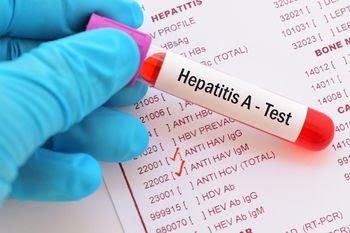 Hepatitis A Bisa Sembuh Bila Dikelola Dengan Baik